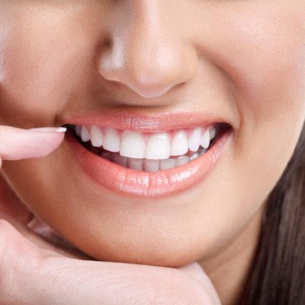 0-viniry-na-perednie-zuby