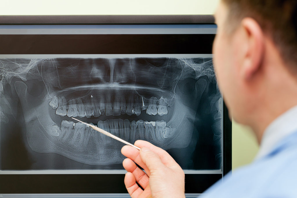 Рентгенологическое исследование решает ряд важных задач.