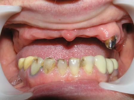 нету зубов