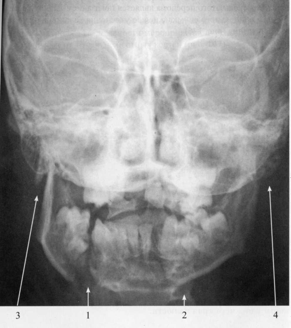 Что такое шинирование челюсти