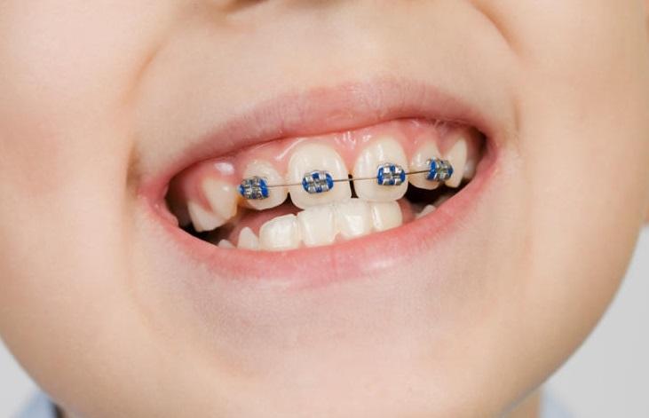 Выравнивание зубов брекетами дети