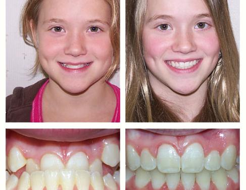 брекеты дети до и после