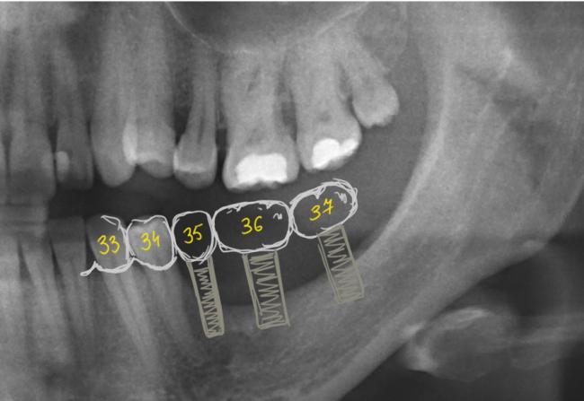 неправильное удаление зуба