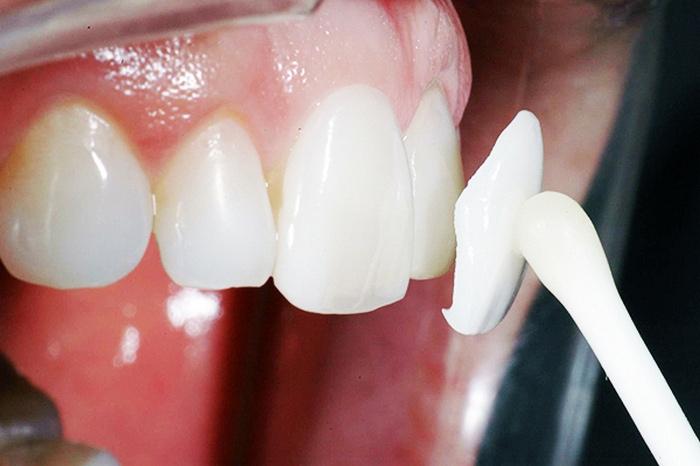 установки стоматологических виниров