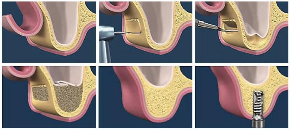 Что такое синус-лифтинг в стоматологии?