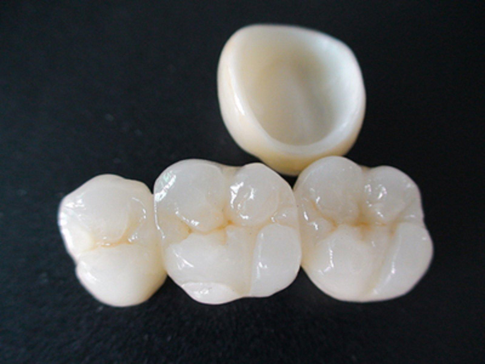 стоматологической керамики