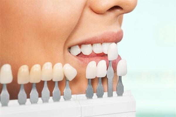 Протезирование зубов металлокерамикой