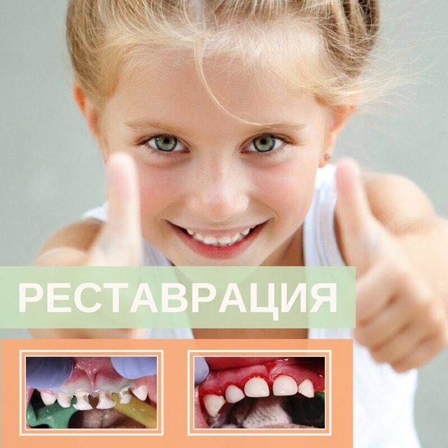 реставрация молочных зубов