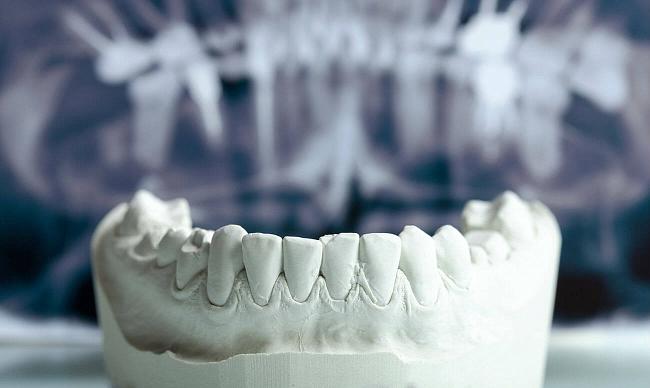 Реконструкция костной ткани