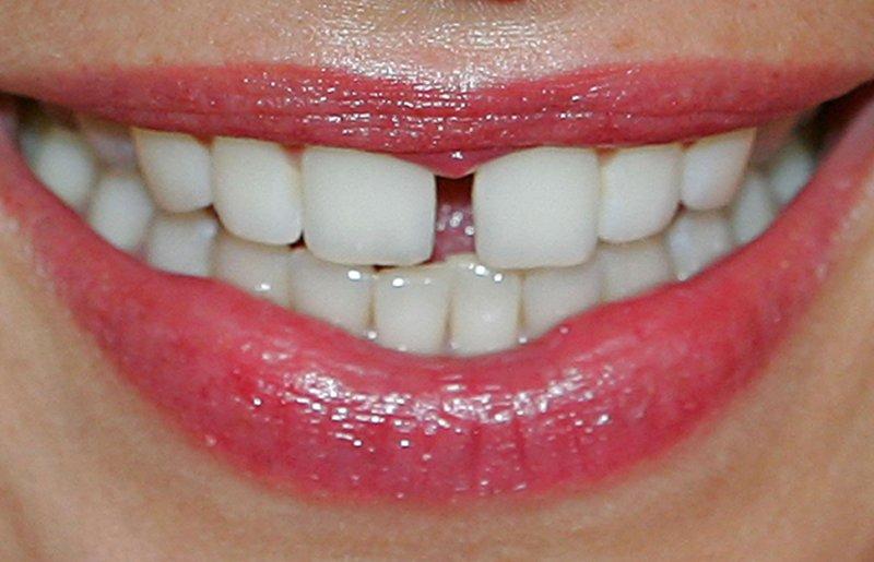 Устранение промежутков между зубами