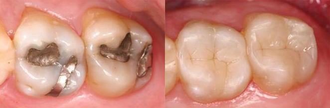 Лечение кариеса в стоматологии