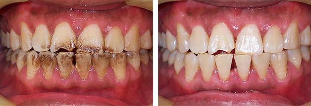 гигиеническая чистка зубов до и после